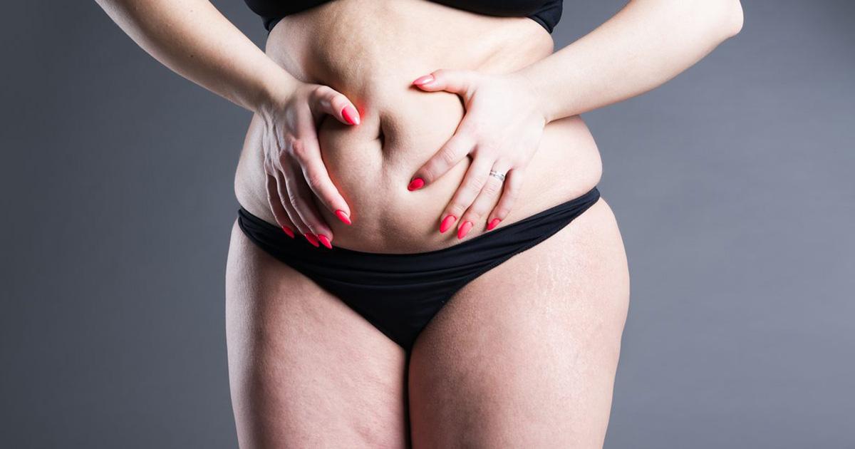 Χειρουργική-Παχυσαρκίας